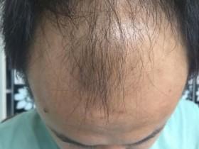 治脂溢性脱发中药(外用篇)已经接近尾声