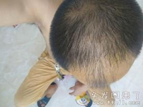 第一瓶生发药酒已经使用结束,又剪了一个浅平头