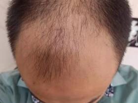 理发时听理发小哥推荐,新买了一款号称可以生发的洗发液:禾道一【落洗安】