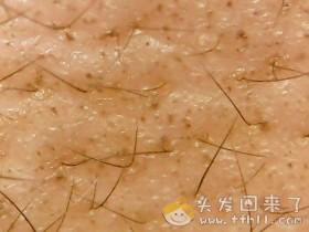 头皮检测仪记录头发状态(2021.4.22)