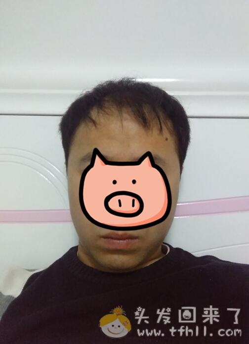 头上有小绒毛发开始长长、长粗了,应该不是心理因素图片 No.1