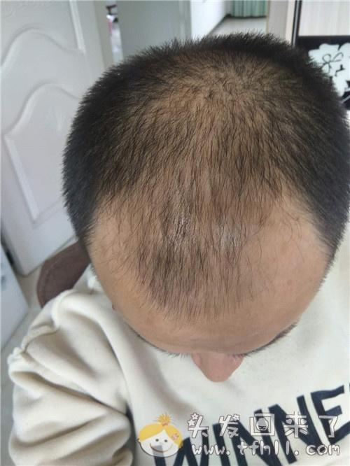 如何看待吃了44天的中药治脱发,却看不到效果或说效果不明显图片 No.2
