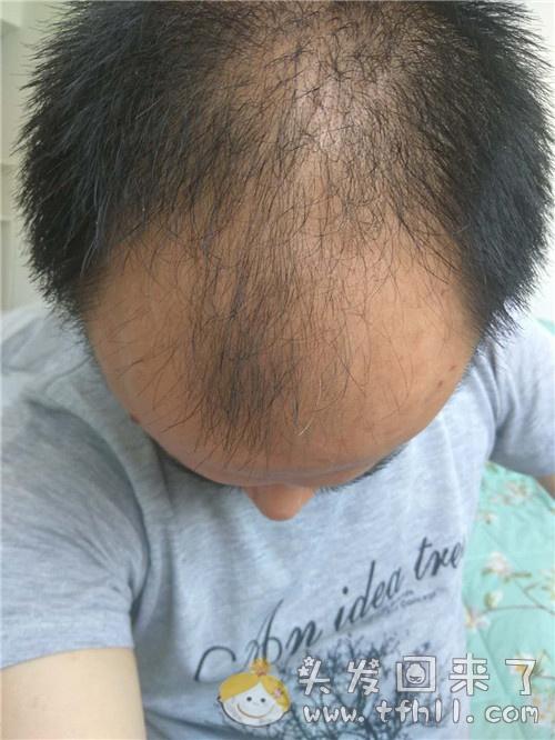 如何看待吃了44天的中药治脱发,却看不到效果或说效果不明显图片 No.3