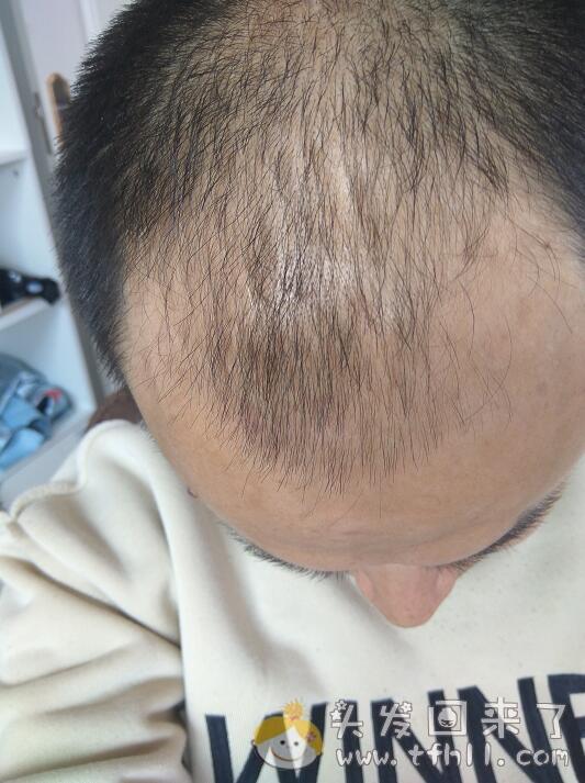 关于目前的头发状态,我最害怕一种结果图片 No.1