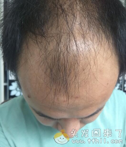 治脂溢性脱发中药(外用篇)已经接近尾声图片