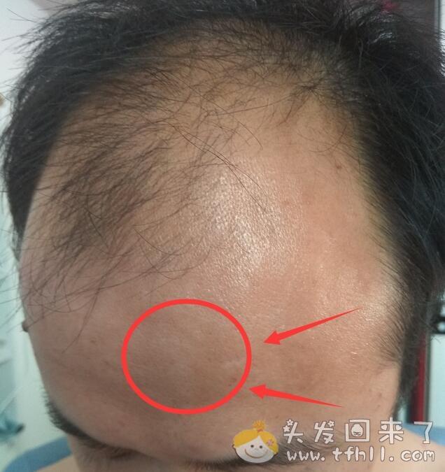 用头发检测仪拍头发的照片,与一个月前的情况作对比图片 No.10