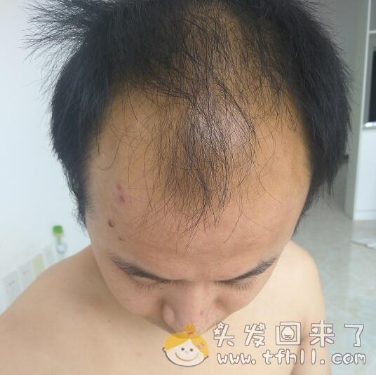 关于目前的头发状态,我最害怕一种结果图片 No.2