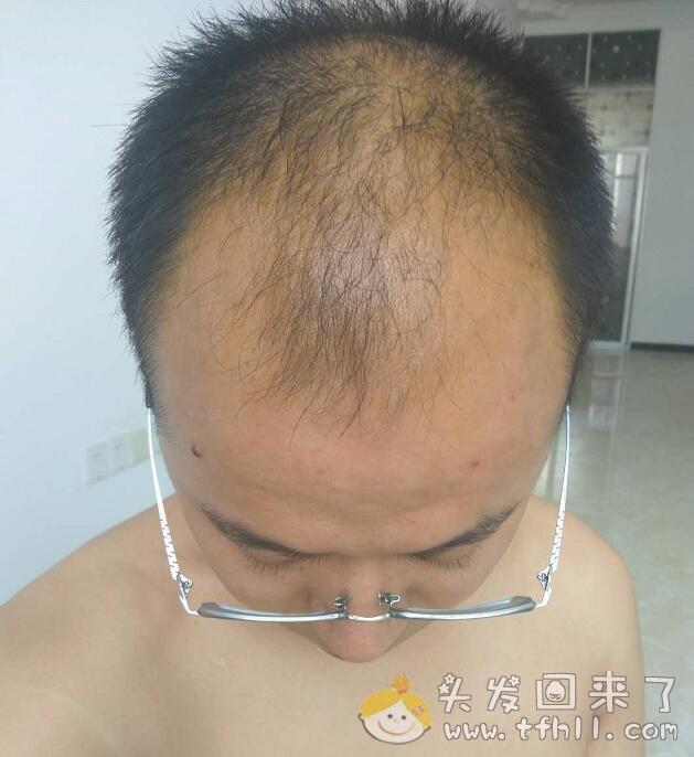 30岁生日这天的头发记录(头皮检测仪拍照)图片 No.16