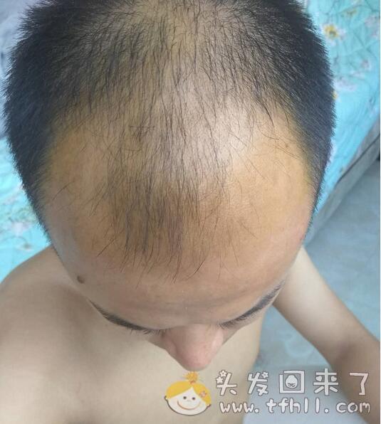 对着太阳照镜子,不用头皮检测仪也能看到头皮的小绒毛图片 No.1