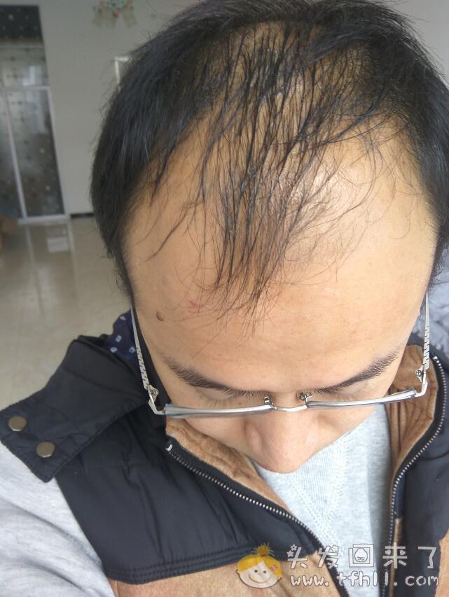 第二次使用头皮营养液的过程记录图片 No.2