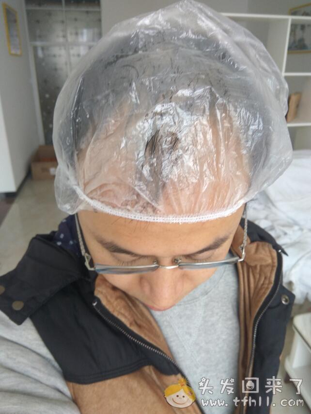 第二次使用头皮营养液的过程记录图片 No.3