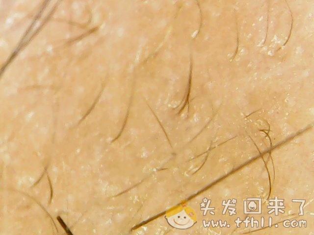 头皮检测仪记录小Y头发生长的图片(2018年12月23日)图片 No.3