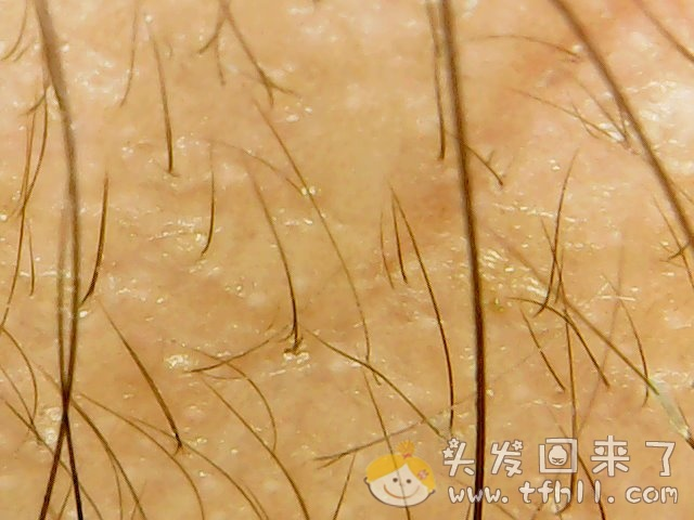 头皮检测仪记录小Y头发生长的图片(2018年12月23日)图片 No.5