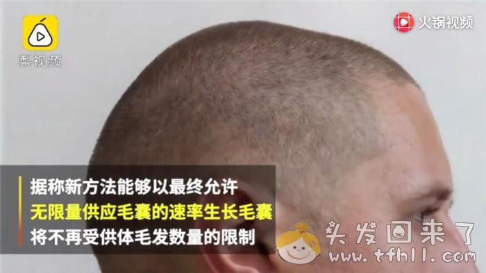 [视频]3D打印毛囊技术出现,秃头和脱发有救了?图片 No.4