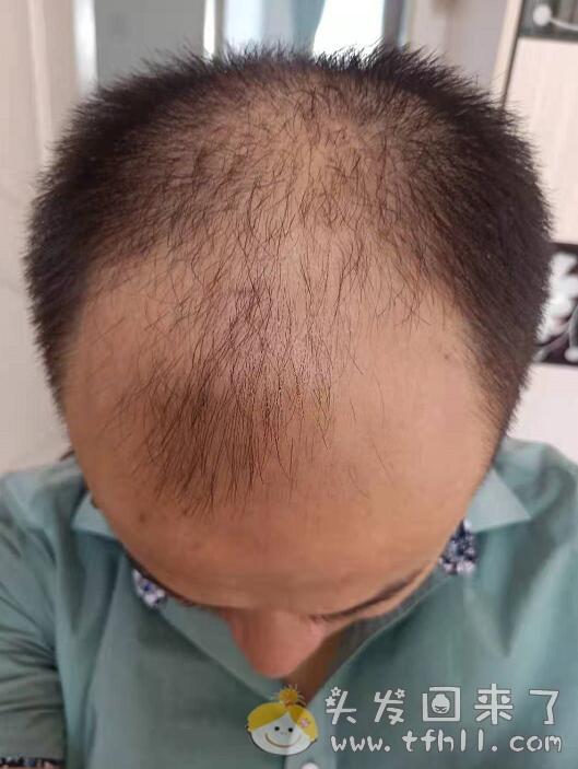 理发时听理发小哥推荐,新买了一款号称可以生发的洗发液:禾道一【落洗安】图片 No.1