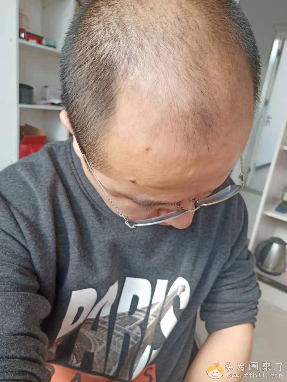 头皮检测仪记录头发状态(2021.4.22)图片 No.13