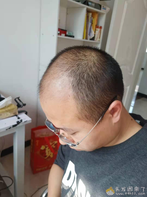 头皮检测仪记录头发状态(2021.4.22)图片 No.14