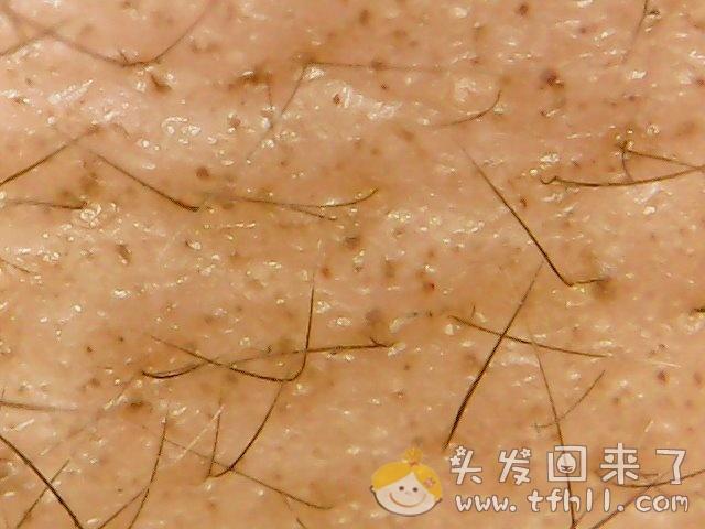 头皮检测仪记录头发状态(2021.4.22)图片 No.1
