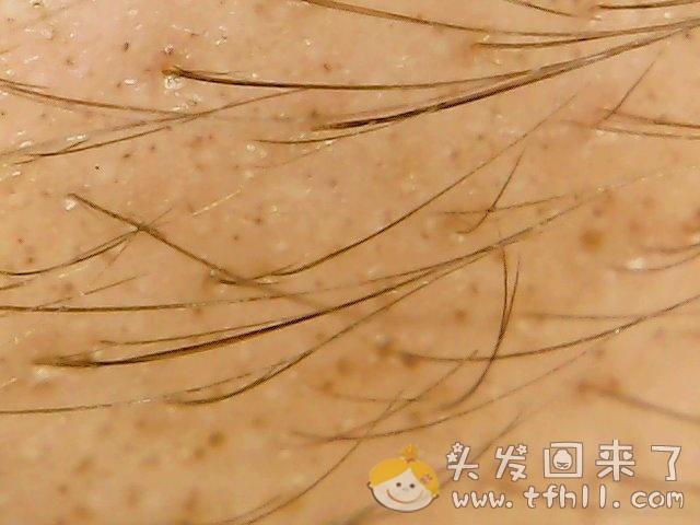 头皮检测仪记录头发状态(2021.4.22)图片 No.3