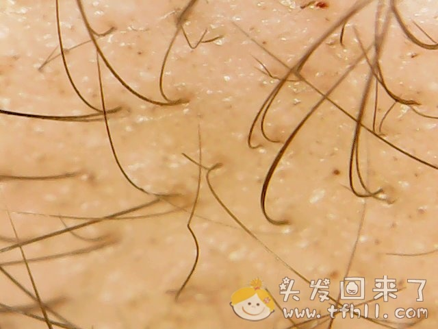 头皮检测仪记录头发状态(2021.4.22)图片 No.12